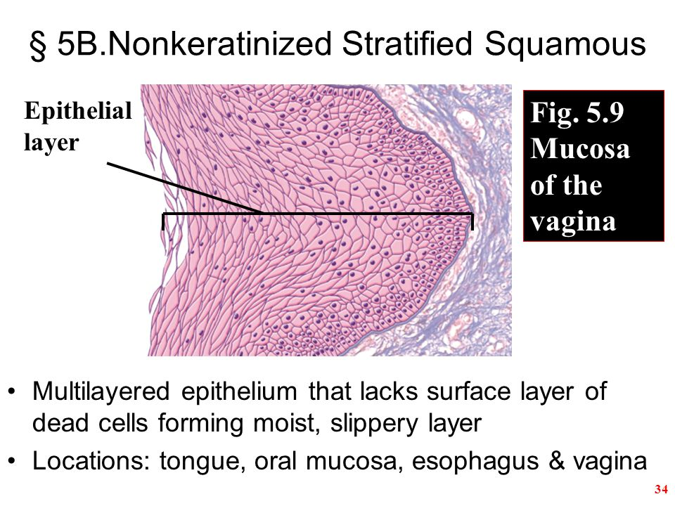 34 § 5B.Nonkeratinized Stratified Squamous Multilayered epithelium that lacks surface layer of dead cells forming moist, slippery layer Locations: tongue, oral mucosa, esophagus & vagina Epithelial layer Fig.