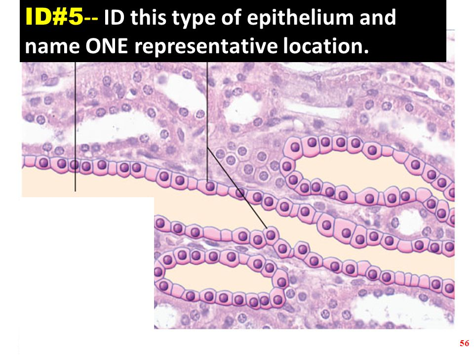 56 ID#5 -- ID this type of epithelium and name ONE representative location.