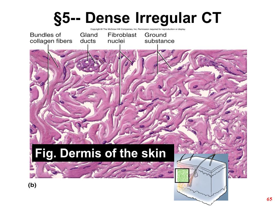 65 §5-- Dense Irregular CT Fig. Dermis of the skin