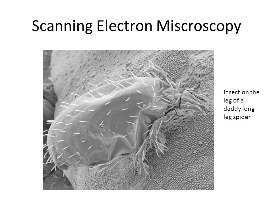 Scanning Electron Miscroscopy Insect on the leg of a daddy long- leg spider