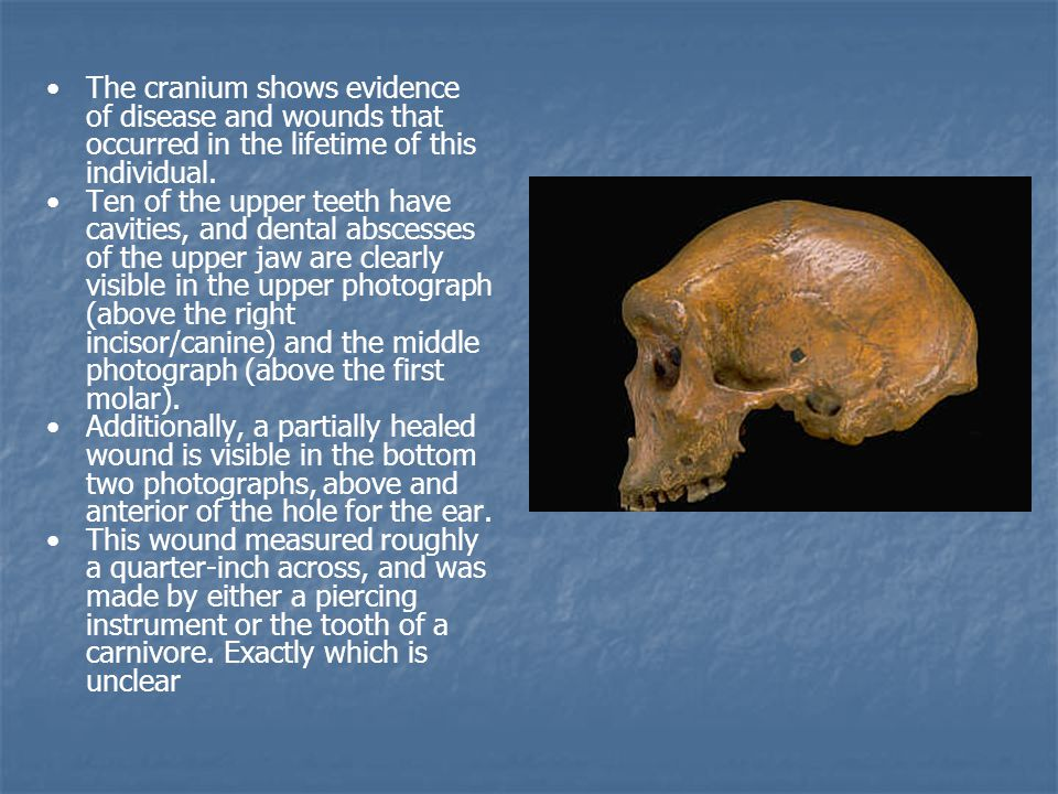 The cranium shows evidence of disease and wounds that occurred in the lifetime of this individual. Ten of the upper teeth have cavities, and dental ab