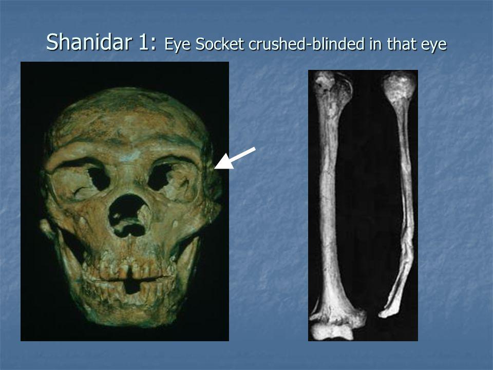 Shanidar 1: Eye Socket crushed-blinded in that eye