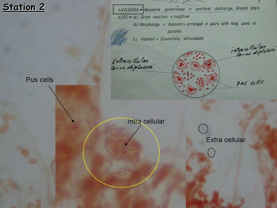 Pus cells Extra cellular Intra cellular Station 2