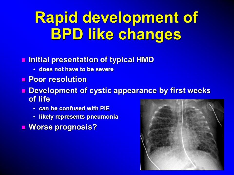 Rapid development of BPD like changes n Initial presentation of typical HMD does not have to be severedoes not have to be severe n Poor resolution n Development of cystic appearance by first weeks of life can be confused with PIEcan be confused with PIE likely represents pneumonialikely represents pneumonia n Worse prognosis