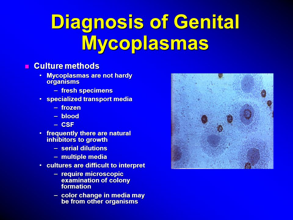 Diagnosis of Genital Mycoplasmas n Culture methods Mycoplasmas are not hardy organismsMycoplasmas are not hardy organisms –fresh specimens specialized transport mediaspecialized transport media –frozen –blood –CSF frequently there are natural inhibitors to growthfrequently there are natural inhibitors to growth –serial dilutions –multiple media cultures are difficult to interpretcultures are difficult to interpret –require microscopic examination of colony formation –color change in media may be from other organisms