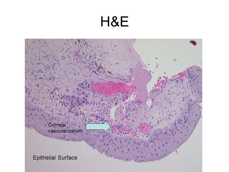 H&E Corneal vascularization Epithelial Surface