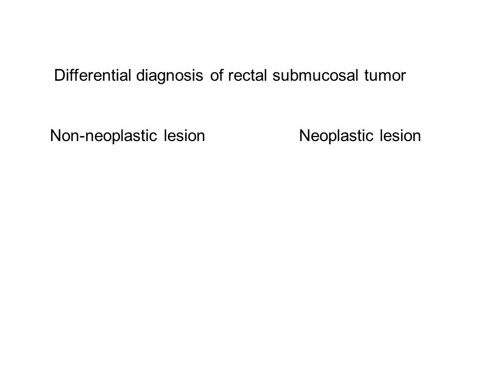 Differential diagnosis of rectal submucosal tumor Non-neoplastic lesionNeoplastic lesion