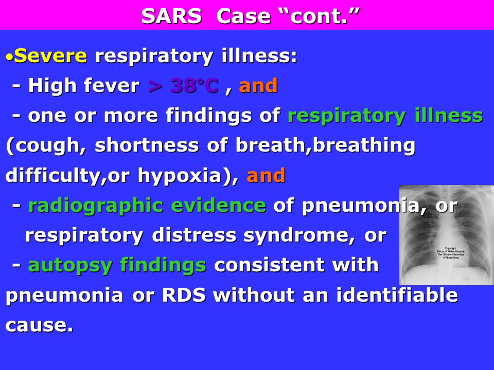 Severe respiratory illness: - High fever > 38°C, and - High fever > 38°C, and - one or more findings of respiratory illness (cough, shortness of breath,breathing difficulty,or hypoxia), and - one or more findings of respiratory illness (cough, shortness of breath,breathing difficulty,or hypoxia), and - radiographic evidence of pneumonia, or - radiographic evidence of pneumonia, or respiratory distress syndrome, or respiratory distress syndrome, or - autopsy findings consistent with pneumonia or RDS without an identifiable cause.