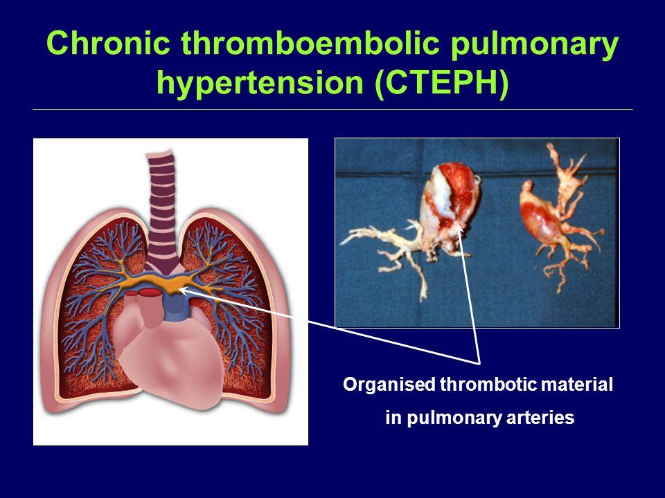 Chronic thromboembolic pulmonary hypertension (CTEPH) Organised thrombotic material in pulmonary arteries