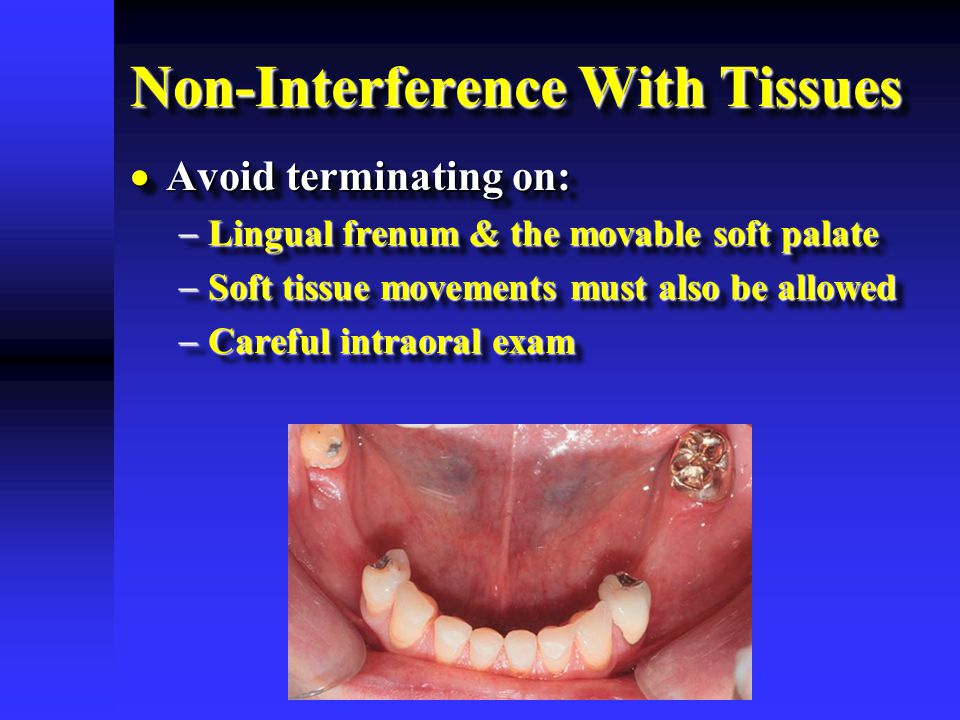 Non-Interference With Tissues  Avoid terminating on:  Lingual frenum & the movable soft palate  Soft tissue movements must also be allowed  Carefu