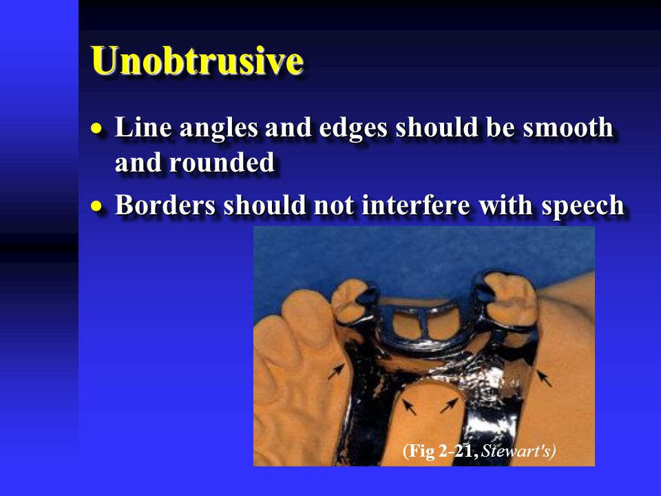 UnobtrusiveUnobtrusive  Line angles and edges should be smooth and rounded  Borders should not interfere with speech  Line angles and edges should