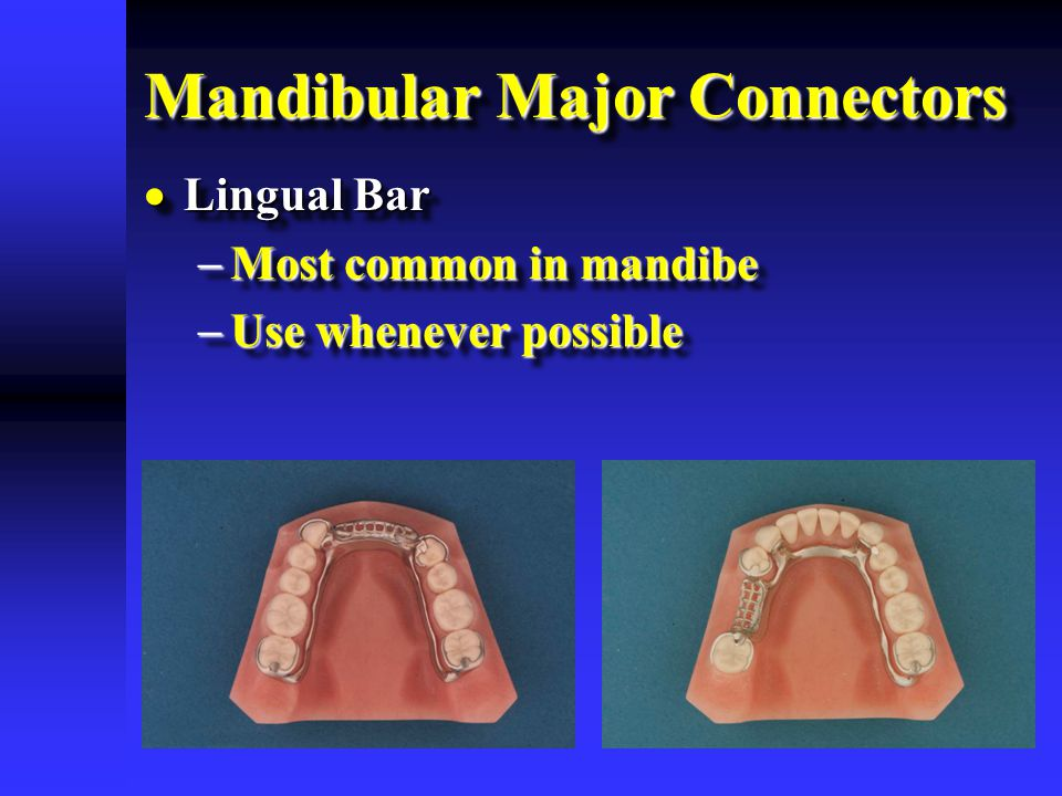 Mandibular Major Connectors  Lingual Bar  Most common in mandibe  Use whenever possible  Lingual Bar  Most common in mandibe  Use whenever possible