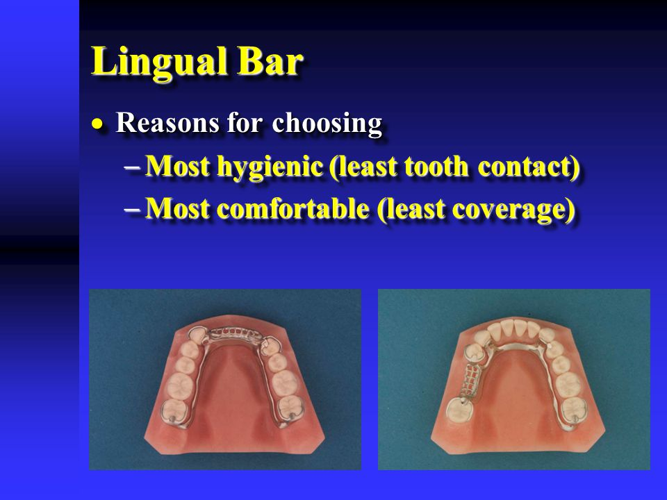 Lingual Bar  Reasons for choosing  Most hygienic (least tooth contact)  Most comfortable (least coverage)  Reasons for choosing  Most hygienic (l
