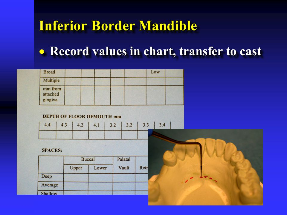 Inferior Border Mandible  Record values in chart, transfer to cast
