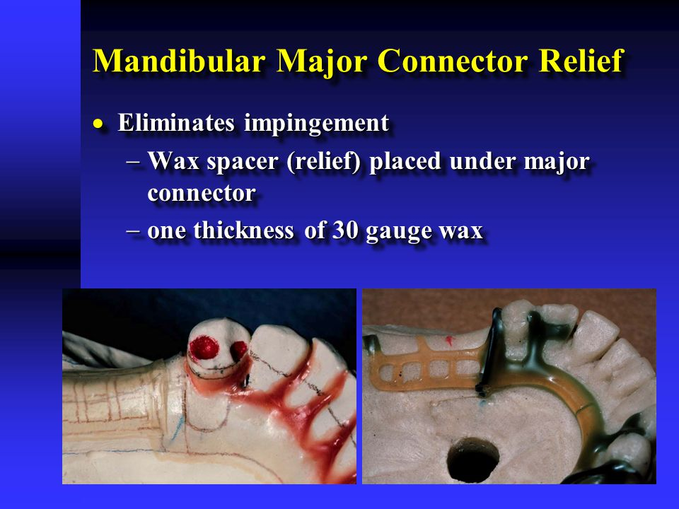 Mandibular Major Connector Relief  Eliminates impingement  Wax spacer (relief) placed under major connector  one thickness of 30 gauge wax  Elimin