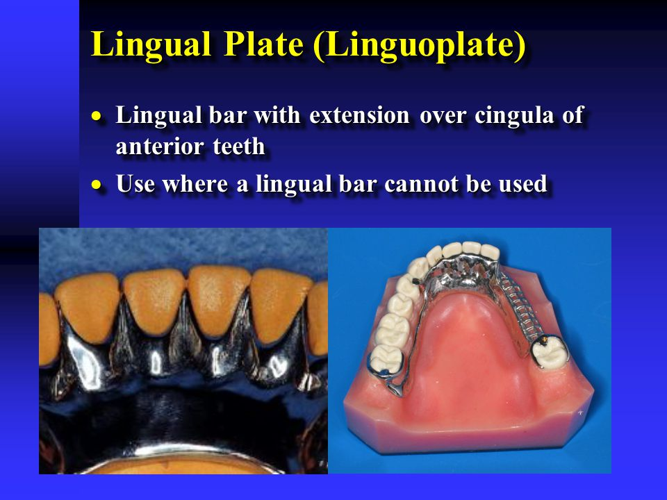 Lingual Plate (Linguoplate)  Lingual bar with extension over cingula of anterior teeth  Use where a lingual bar cannot be used  Lingual bar with ex