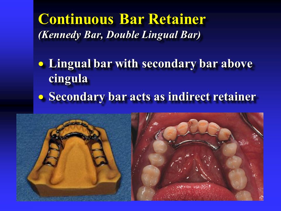 Continuous Bar Retainer (Kennedy Bar, Double Lingual Bar)  Lingual bar with secondary bar above cingula  Secondary bar acts as indirect retainer  L
