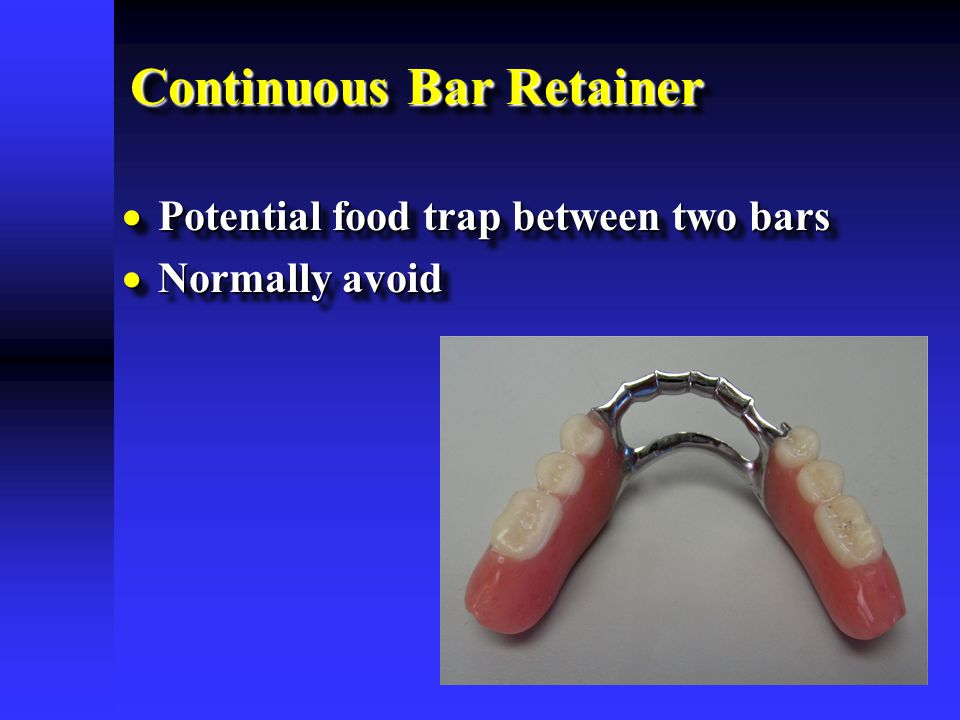 Continuous Bar Retainer  Potential food trap between two bars  Normally avoid  Potential food trap between two bars  Normally avoid