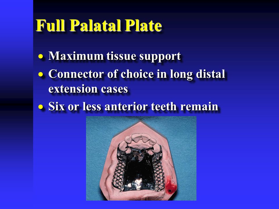 Full Palatal Plate  Maximum tissue support  Connector of choice in long distal extension cases  Six or less anterior teeth remain  Maximum tissue