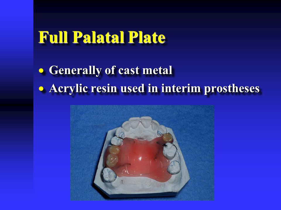 Full Palatal Plate  Generally of cast metal  Acrylic resin used in interim prostheses  Generally of cast metal  Acrylic resin used in interim pros