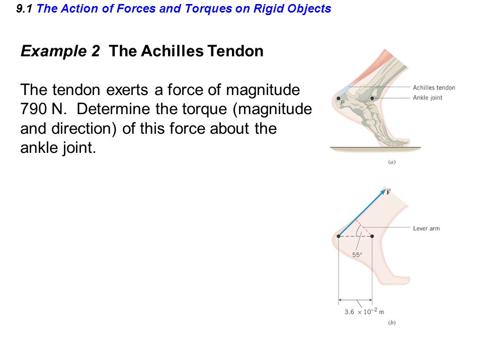 9.1 The Action of Forces and Torques on Rigid Objects Example 2 The Achilles Tendon The tendon exerts a force of magnitude 790 N. Determine the torque