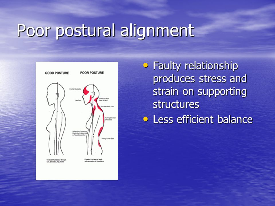 Poor postural alignment Faulty relationship produces stress and strain on supporting structures Faulty relationship produces stress and strain on supp