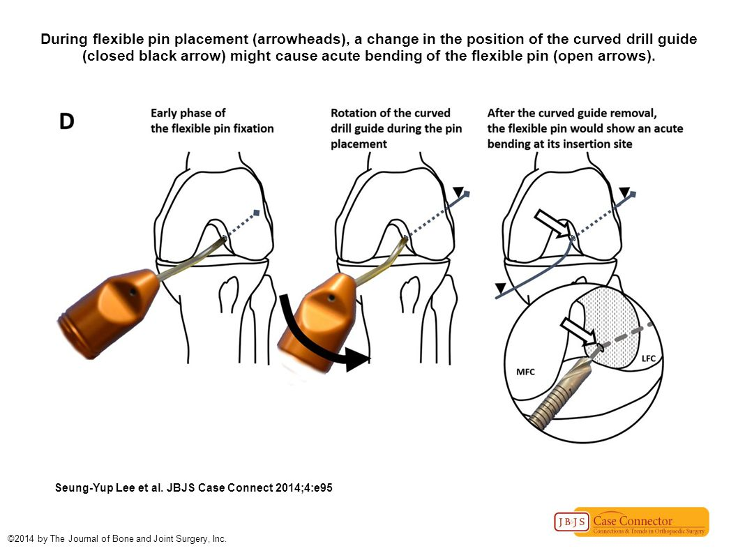 During flexible pin placement (arrowheads), a change in the position of the curved drill guide (closed black arrow) might cause acute bending of the flexible pin (open arrows).