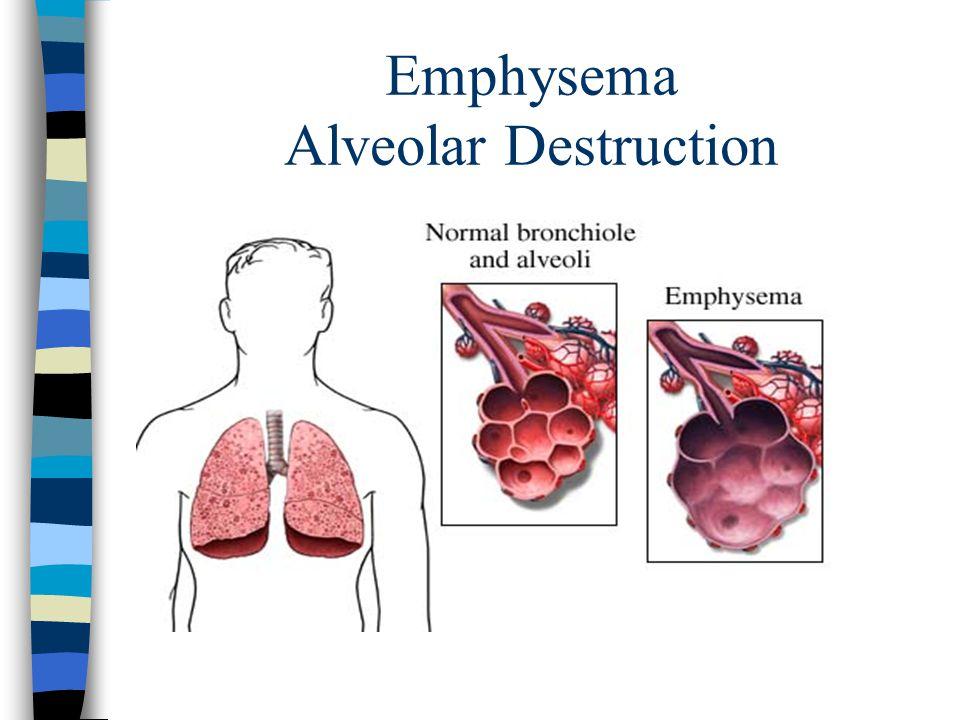Emphysema Alveolar Destruction