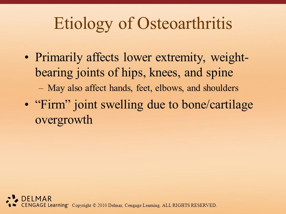 Copyright © 2010 Delmar, Cengage Learning. ALL RIGHTS RESERVED. Etiology of Osteoarthritis Primarily affects lower extremity, weight- bearing joints o