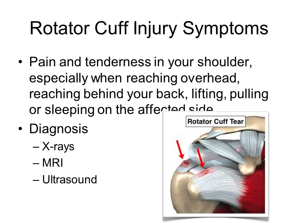 Causes of Rotator Cuff Injuries Normal wear and tear.