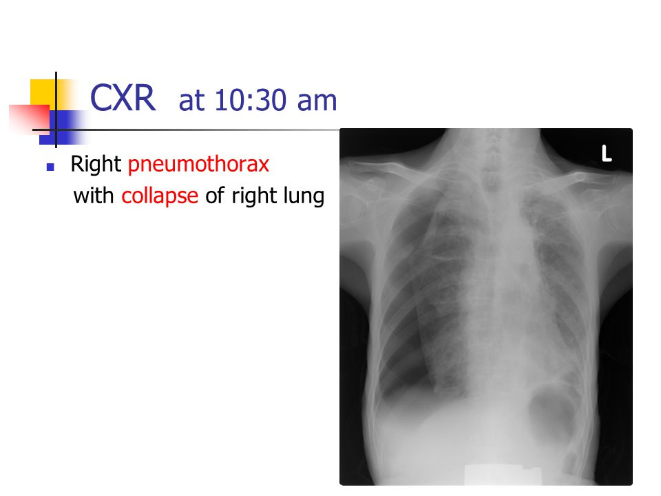 CXR at 10:30 am Right pneumothorax with collapse of right lung