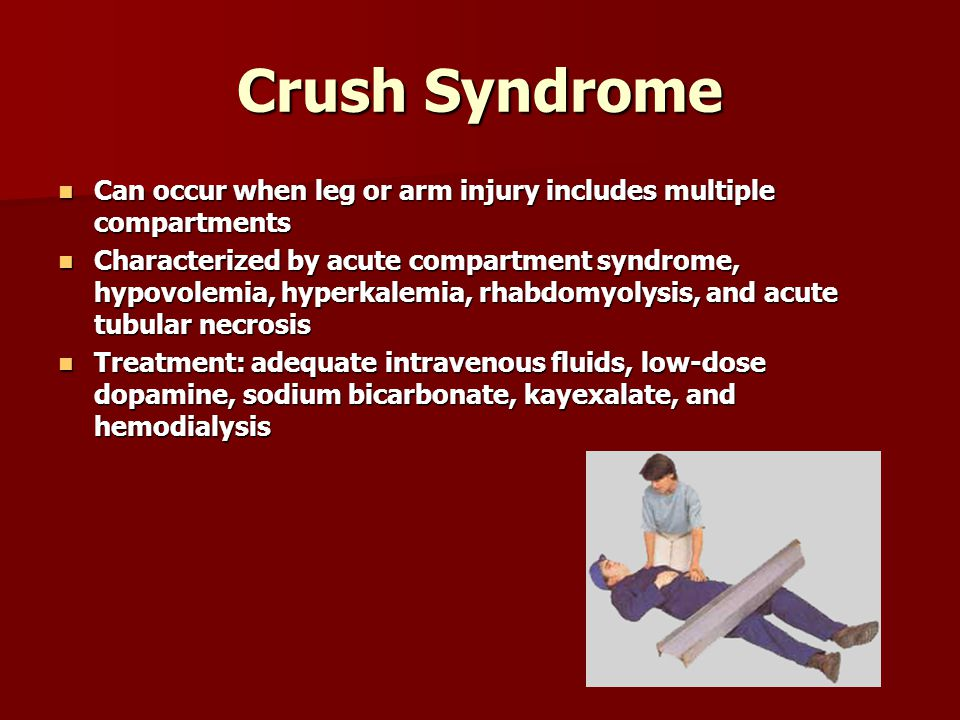 Crush Syndrome Can occur when leg or arm injury includes multiple compartments Can occur when leg or arm injury includes multiple compartments Characterized by acute compartment syndrome, hypovolemia, hyperkalemia, rhabdomyolysis, and acute tubular necrosis Characterized by acute compartment syndrome, hypovolemia, hyperkalemia, rhabdomyolysis, and acute tubular necrosis Treatment: adequate intravenous fluids, low-dose dopamine, sodium bicarbonate, kayexalate, and hemodialysis Treatment: adequate intravenous fluids, low-dose dopamine, sodium bicarbonate, kayexalate, and hemodialysis