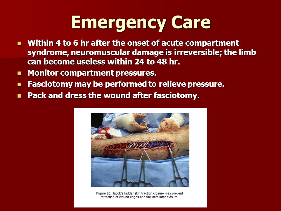 Emergency Care Within 4 to 6 hr after the onset of acute compartment syndrome, neuromuscular damage is irreversible; the limb can become useless within 24 to 48 hr.