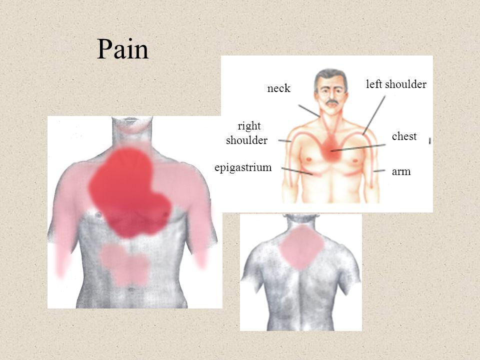 Pain left shoulder right shoulder arm neck epigastrium chest