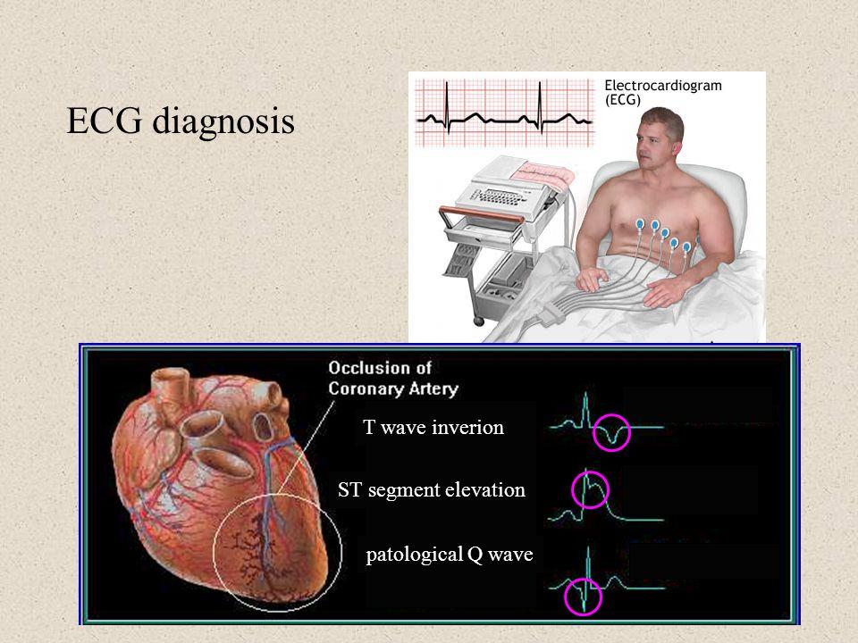 T wave inverion ST segment elevation patological Q wave ECG diagnosis