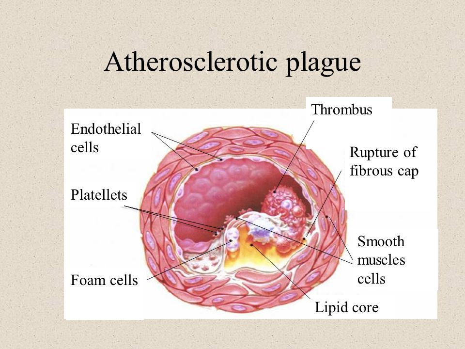 Atherosclerotic plague Endothelial cells Thrombus Rupture of fibrous cap Smooth muscles cells Lipid core Platellets Foam cells