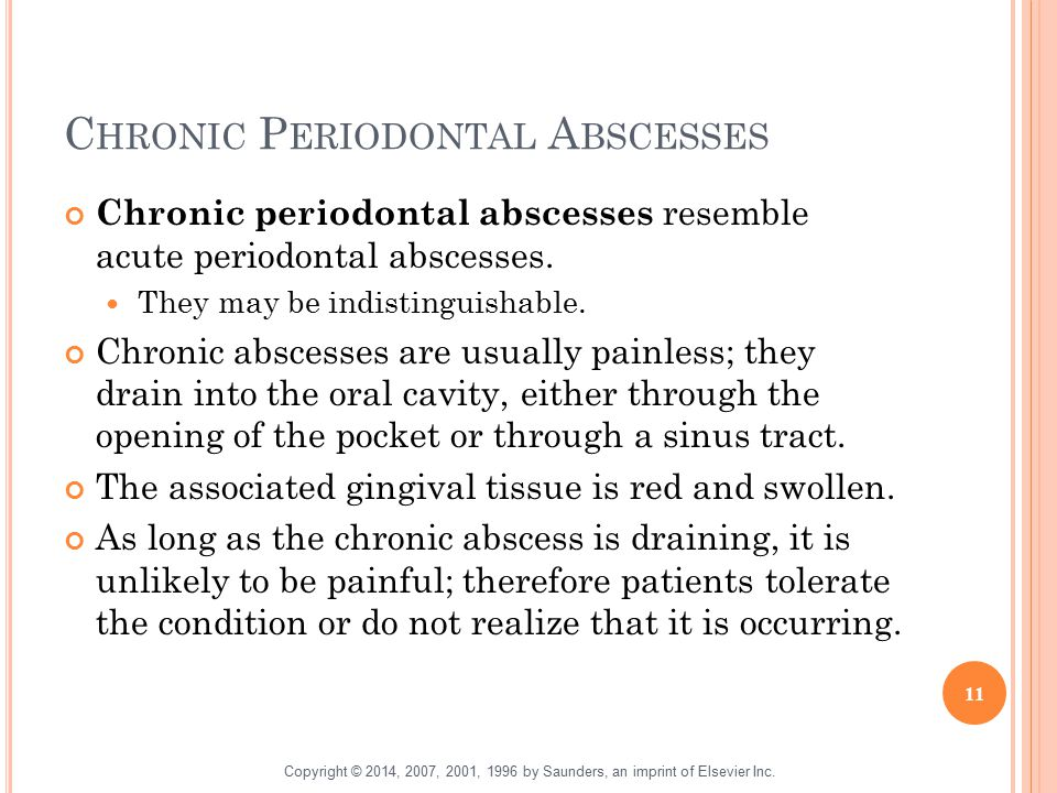 C HRONIC P ERIODONTAL A BSCESSES Chronic periodontal abscesses resemble acute periodontal abscesses. They may be indistinguishable. Chronic abscesses