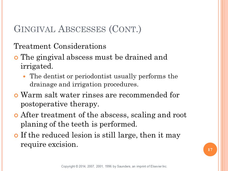 G INGIVAL A BSCESSES (C ONT.) Treatment Considerations The gingival abscess must be drained and irrigated. The dentist or periodontist usually perform
