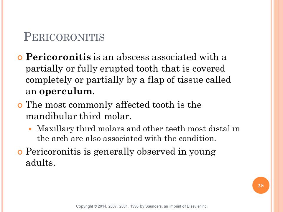 P ERICORONITIS Pericoronitis is an abscess associated with a partially or fully erupted tooth that is covered completely or partially by a flap of tis