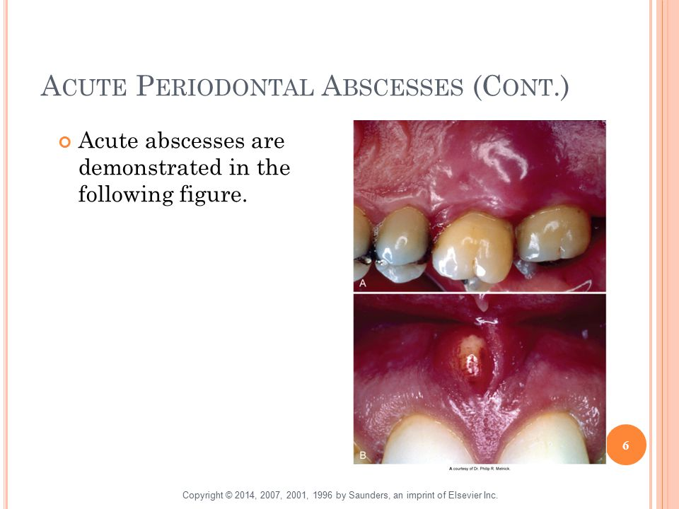 A CUTE P ERIODONTAL A BSCESSES (C ONT.) Acute abscesses are demonstrated in the following figure. 6 Copyright © 2014, 2007, 2001, 1996 by Saunders, an