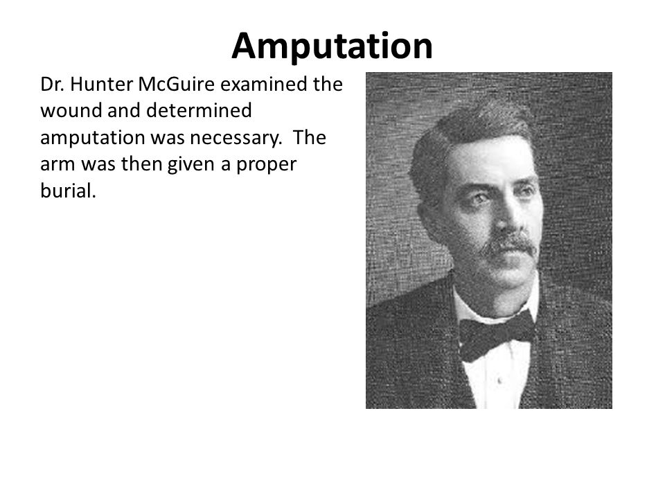 Amputation Dr. Hunter McGuire examined the wound and determined amputation was necessary.
