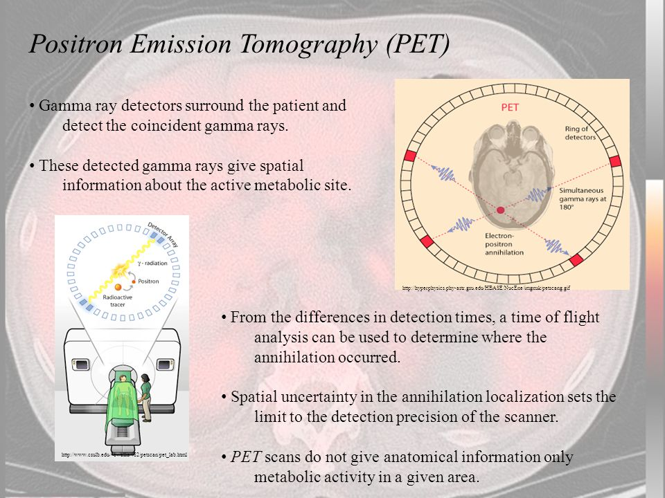 http://hyperphysics.phy-astr.gsu.edu/HBASE/NucEne/imgnuk/petscang.gif Positron Emission Tomography (PET) Gamma ray detectors surround the patient and detect the coincident gamma rays.