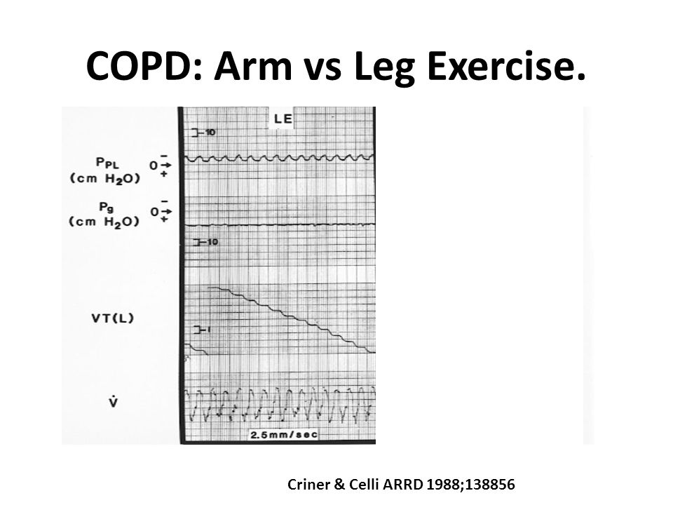 Arm Elevation and COPD Martinez AJRCCM 1991;143:476