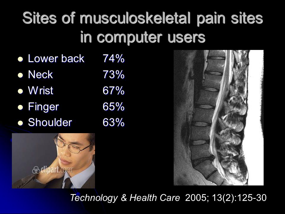 Sites of musculoskeletal pain sites in computer users Lower back74% Lower back74% Neck73% Neck73% Wrist67% Wrist67% Finger65% Finger65% Shoulder63% Sh