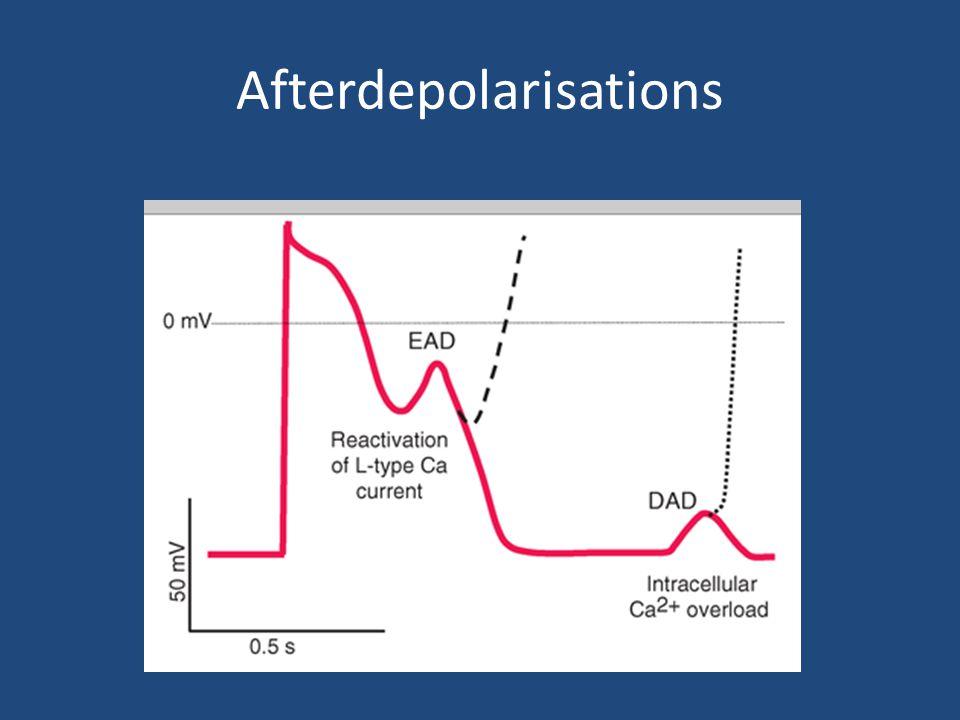 Afterdepolarisations
