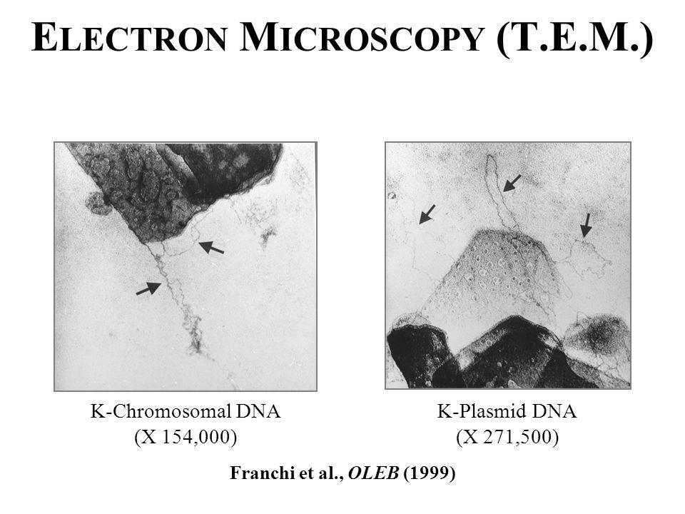 E LECTRON M ICROSCOPY (T.E.M.) K-Chromosomal DNA (X 154,000) K-Plasmid DNA (X 271,500) Franchi et al., OLEB (1999)