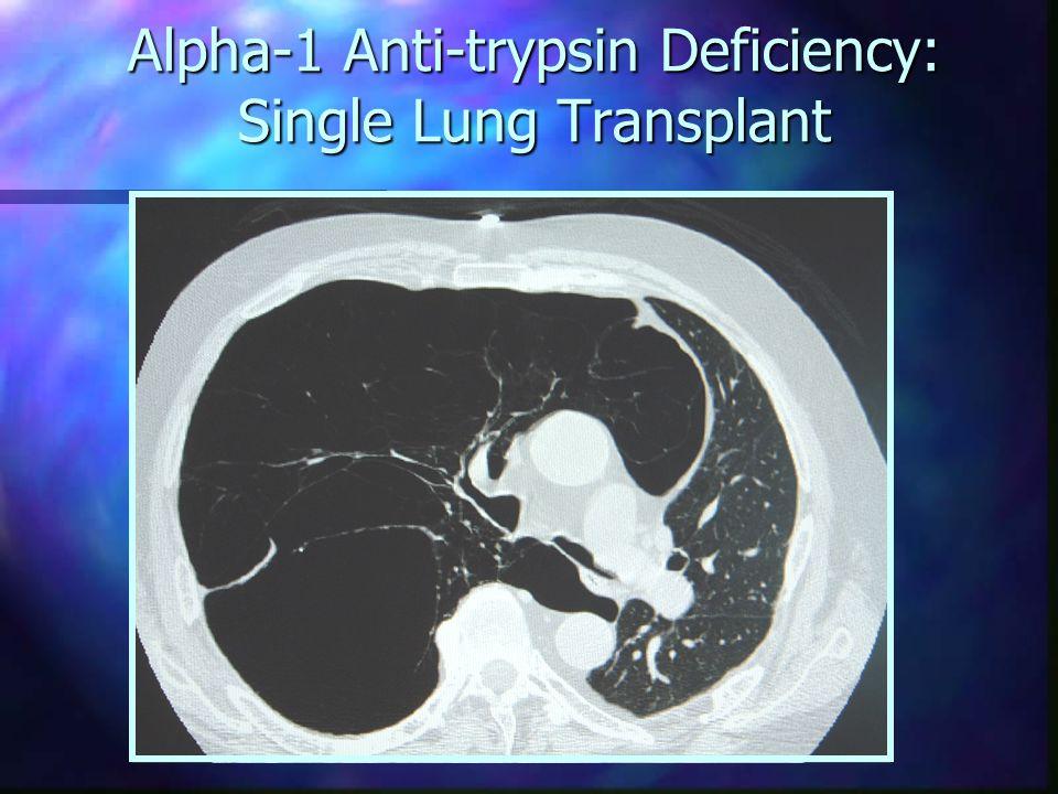 Single Lung Transplant: IPF