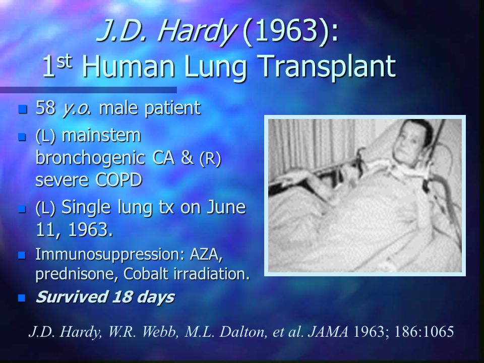 Lung Transplantation David J. Ross, M.D.