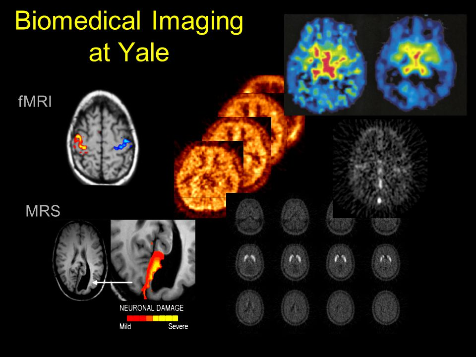 Biomedical Imaging at Yale fMRI MRS