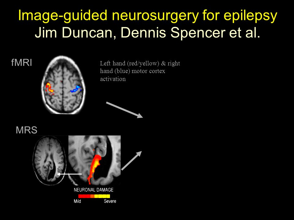 Left hand (red/yellow) & right hand (blue) motor cortex activation fMRI MRS Image-guided neurosurgery for epilepsy Jim Duncan, Dennis Spencer et al.